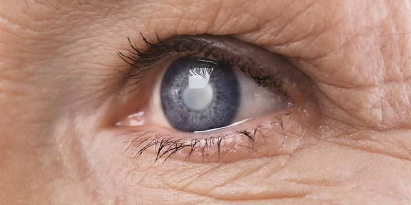 Đục thủy tinh thể có thể là một trong những tác dụng phụ của thuốc