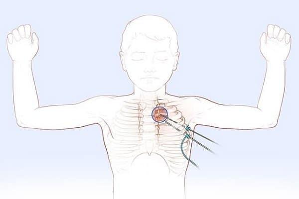 Thủ thuật cắt thần kinh giao cảm
