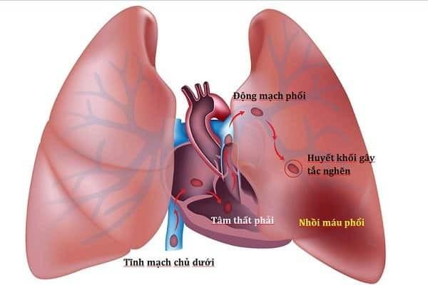 Thuyên tắc phổi do huyết khối