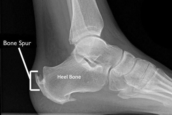 X Quang gai xương
