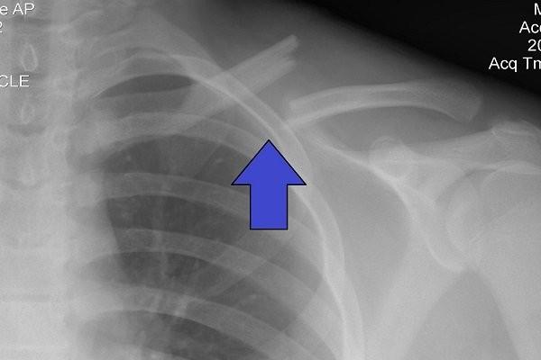 X Quang xương vai bị gãy