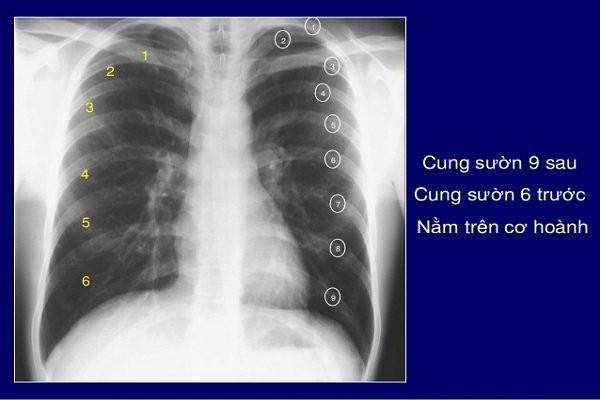X Quang ngực thẳng