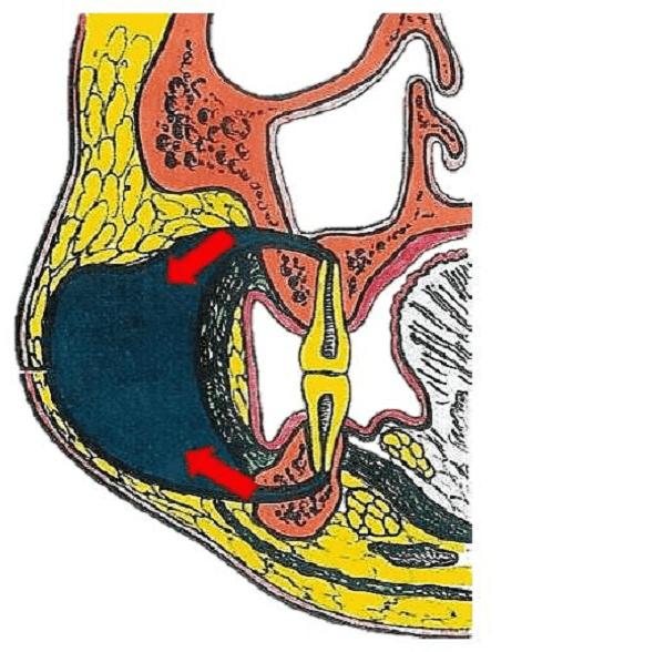 Áp xe má do các răng sau hàm trên và dưới