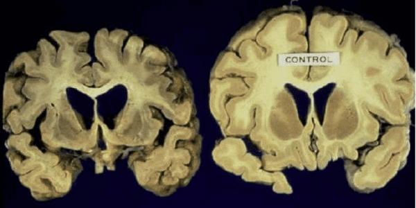 Huntington là một bệnh thoái hóa các tế bào não tiến triển, có tính chất di truyền.