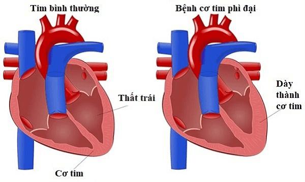 Mô tả bệnh cơ tim phì đại