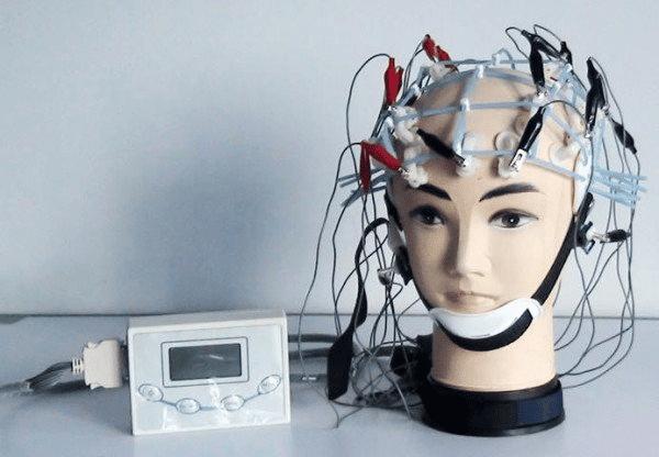 Điện não đồ hỗ trợ chẩn đoán hoang tưởng
