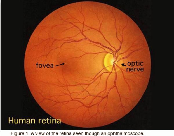 Fovea: Hoàng thể. Optic nerve: Thần kinh thị giác. Human retina: Võng mạc người. Hình ảnh võng mạc qua đèn soi đáy mắt.