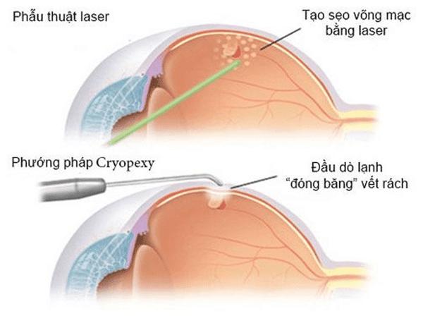 Phương pháp phẫu thuật laser