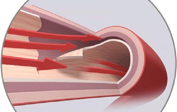 Bóc tách động mạch vành