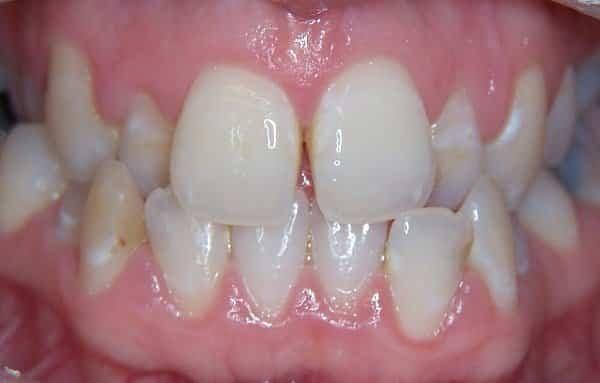 cắn chéo răng trước và răng sau