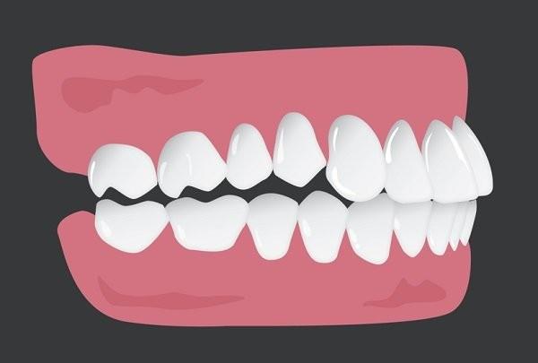 cắn hở răng sau