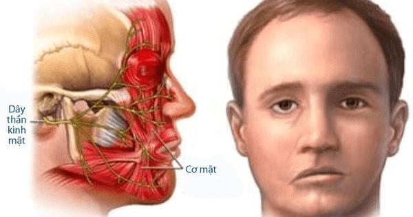 Chứng co giật nửa mặt gây ảnh hưởng tới nhiều nhóm cơ