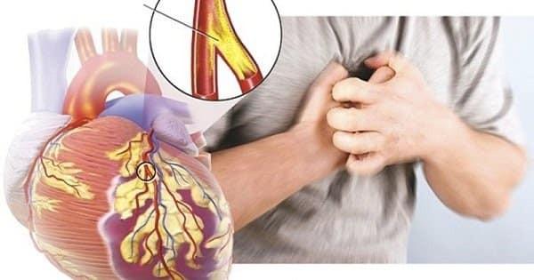 Đau thắt ngực là triệu chứng nguy hiểm