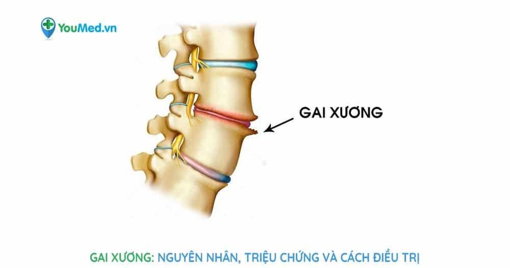 Gai xương: Nguyên nhân, triệu chứng và phương pháp điều trị