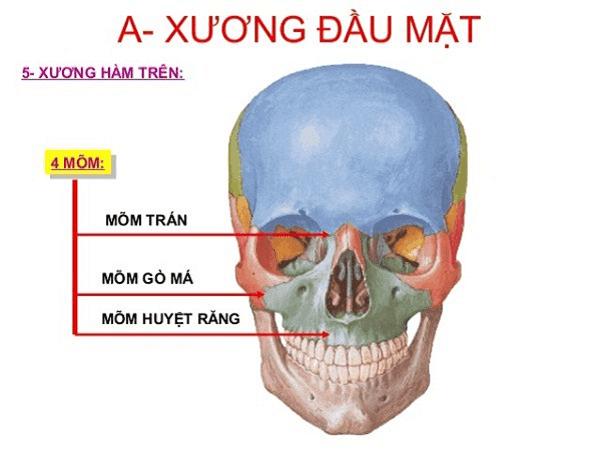 Minh họa xương hàm trên (màu xanh lá cây)