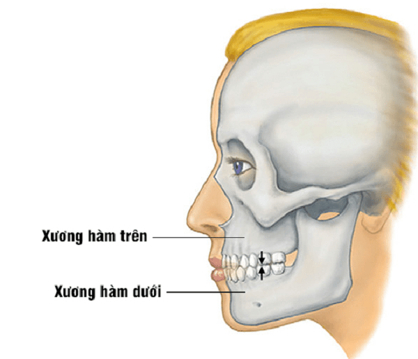 vMinh họa xương hàm trên nhìn bên