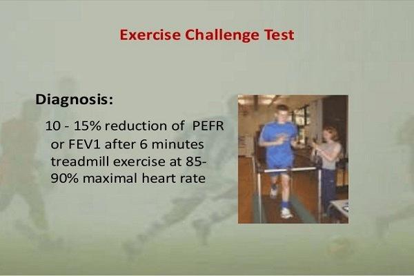 Test vận động thể lực để quan sát và đánh giá triệu chứng