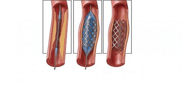 Nong và đặt stent mạch thận là thủ thuật để thông chỗ hẹp giúp cải thiện lưu lượng máu đến thận