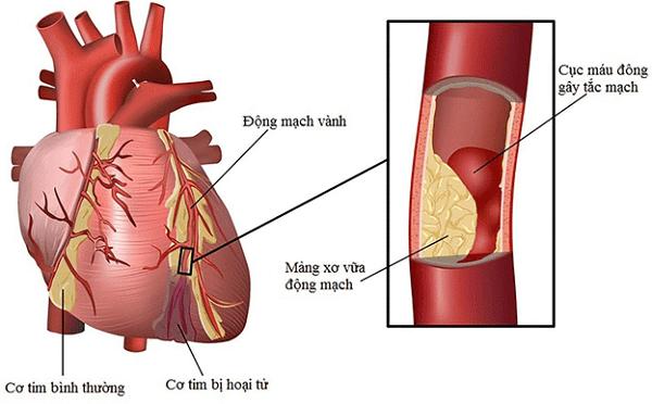 Nhồi máu cơ tim là nguyên nhân thường gặp
