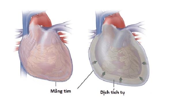 Tràn dịch gây chèn ép tim
