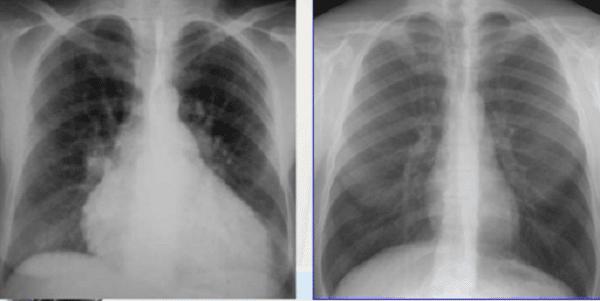 X Quang tim trước và sau tràn dịch
