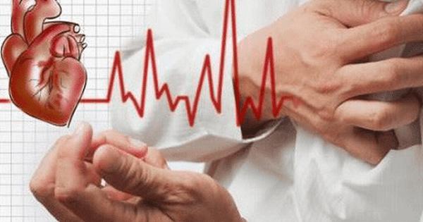 Rối loạn hệ thống dẫn truyền tim là nguyên nhân thường gặp gây hồi hộp
