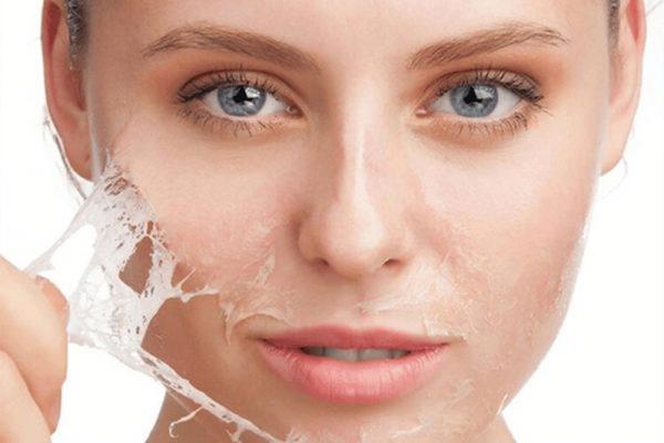 Thay da bằng hóa chất là phương pháp điều trị khá hiệu quả