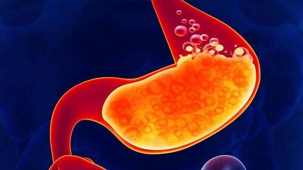 Giảm mức axit trong dạ dày có thể làm tăng nguy cơ nhiễm khuẩn E. coli