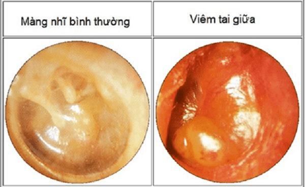 Nhiễm trùng tai có thể gây ảnh hưởng đến thính lực