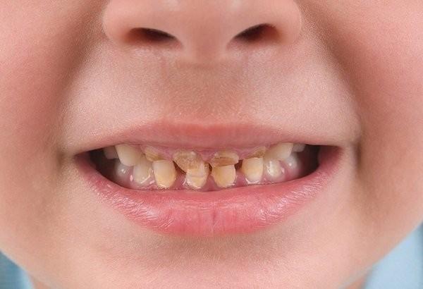 răng ố vàng