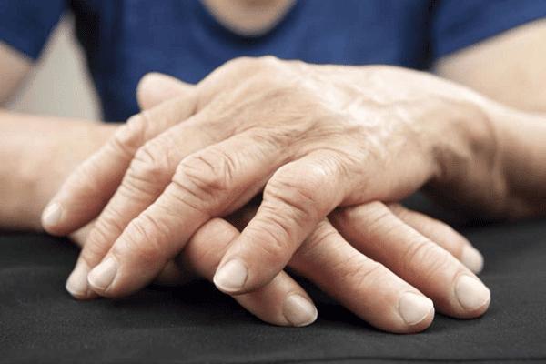 Hình ảnh người bị sưng khớp ngón tay