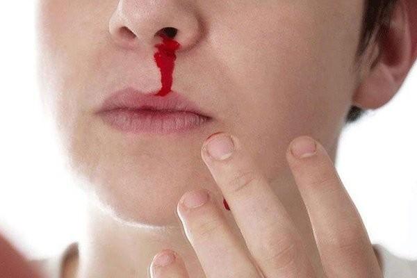 Chảy máu cam cũng có thể là một trong những triệu chứng của thiếu hụt yếu tố V