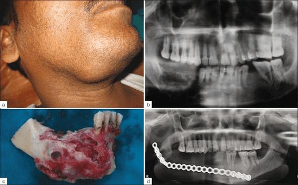 Phẫu thuật cắt đoạn xương hàm và tái tạo ở bệnh nhân u nguyên bào men