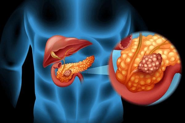 Hầu hết ung thư tuyến tụy bắt đầu trong các tế bào lót các ống dẫn của tuyến tụy