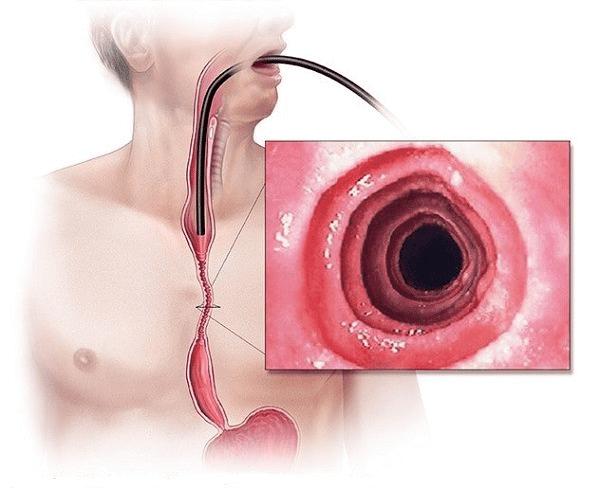 Hình ảnh nội soi thực quản