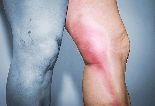 Viêm tĩnh mạch thường xảy ra ở tĩnh mạch chân hơn tĩnh mạch tay