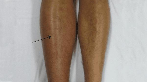 Chân bị viêm tĩnh mạch trở nên sưng, nóng, đỏ, đau hơn