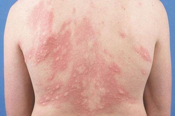 Xương khỉ có nhiều tiềm năng trong y học cổ truyền để điều trị mề đay, mẩn ngứa ngoài da