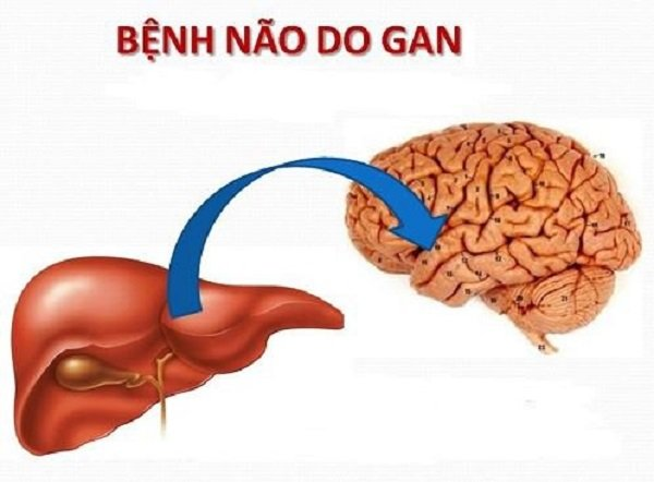 Phát hiện bệnh não gan là trung tâm để chẩn đoán suy gan cấp.