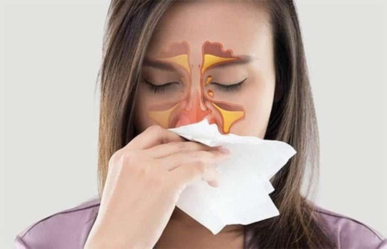 Thuốc xịt mũi Coldi B