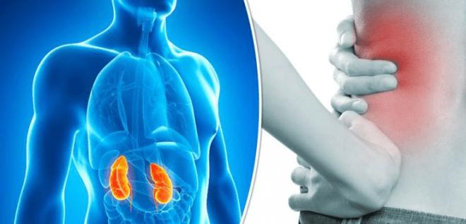 Axit oxalic có thể gây sỏi thận