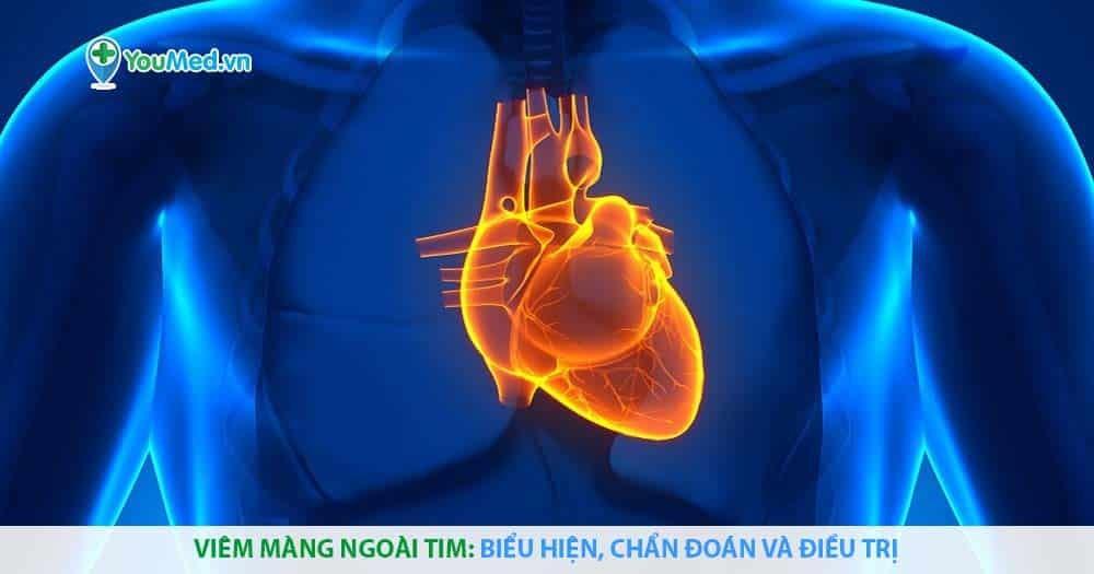 Viêm màng ngoài tim: biểu hiện, chẩn đoán và điều trị