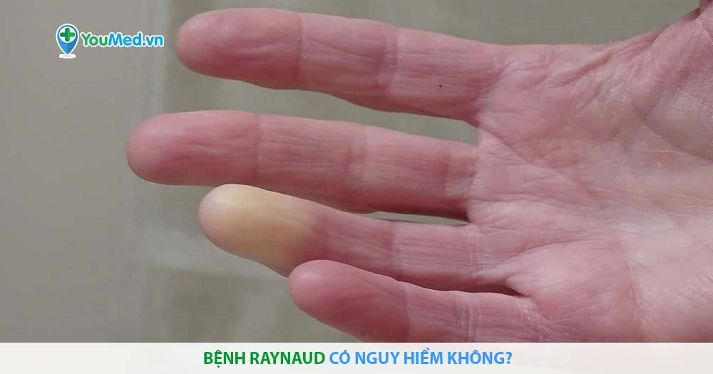 Bệnh Raynaud có nguy hiểm không?