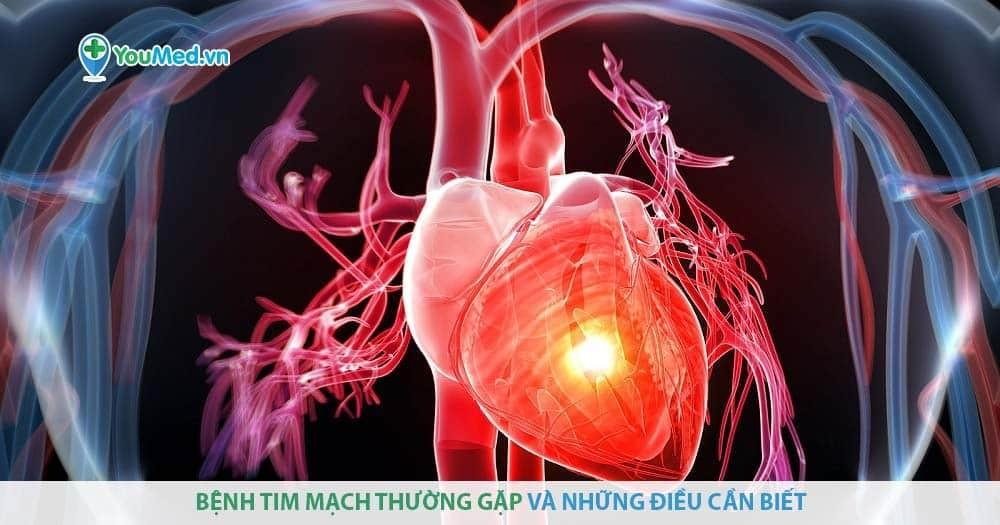 Bệnh tim mạch và cách điều trị