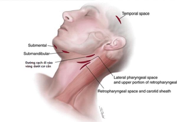 Rạch áp xe đường ngoài mặt được áp dụng khi áp xe tiến triển ra phía da hoặc vào sâu phía cơ cắn