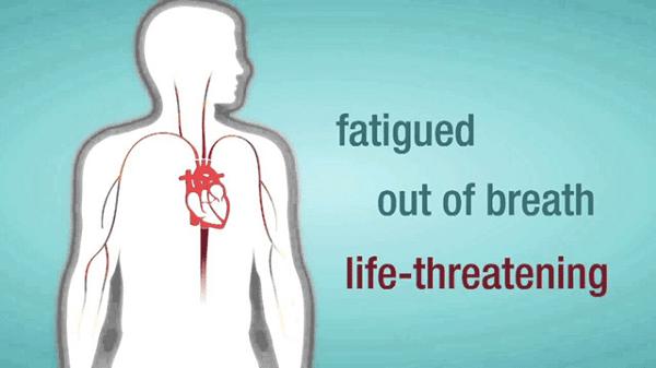 triệu chứng thường gặp của hở van động mạch chủ