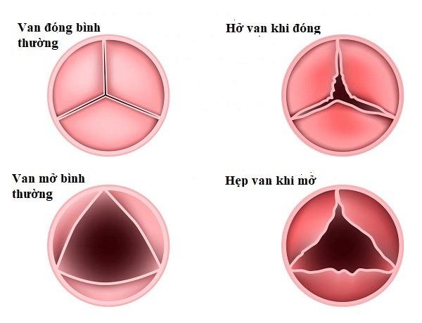 Ở tim, các van tim có thể bị viêm và trở thành sẹo theo thời gian. Hâu quả dẫn đến hẹp hoặc hở van tim, làm cho tim không hoạt động bình thường
