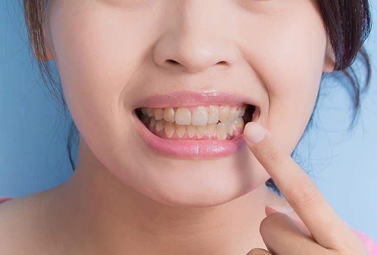 răng ố vàng là tác dụng phụ điển hình Minocycline