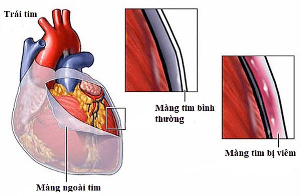 Hình ảnh viêm màng ngoài tim