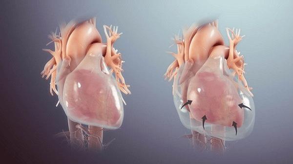 Chèn ép tim có thể gây ra do tràn dịch màng tim số lượng nhiều hoặc lượng ít nhưng dịch thành lập nhanh